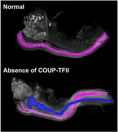 Normal embryos versus Absence of COUP-TFII embryos