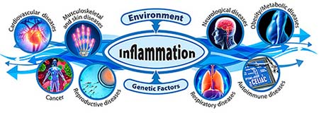 Environment and Genetic Factors influencing Inflammation