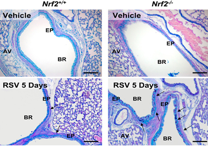 Nrf2 deficiency augmented lung mucous cell metaplasia after respiratory syncytial virus (RSV) infection