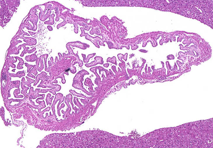 Normal Gallbladder