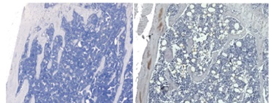 The image on the right shows an increased number of adipocytes, in white, in the bone marrow of TBT-treated mice, compared to the bone marrow of non-TBT-treated mice on the left. (Photo courtesy of Jennifer Schlezinger)
